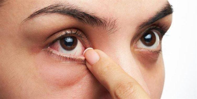 Đau Mắt Đỏ – nguyên nhân, nhận biết và cách điều trị hiệu quả