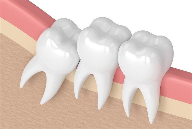 Răng Khôn là răng gì? Thật sự có nên nhổ hay không? …