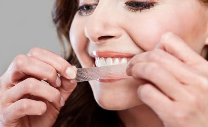 Các phương pháp tẩy trắng răng bạn đã biết?